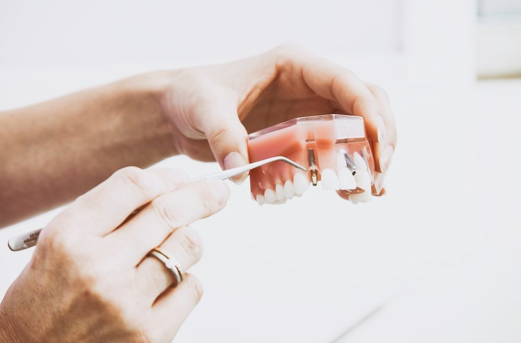 What You Need to Know About Choosing a Suitable Dentist